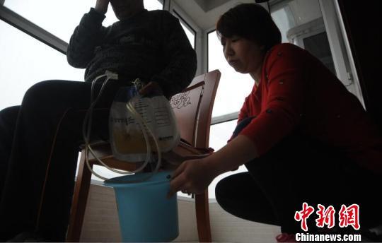 很多时候,申建军(化名)需要女儿的帮忙,来排尽尿袋。 胡健摄